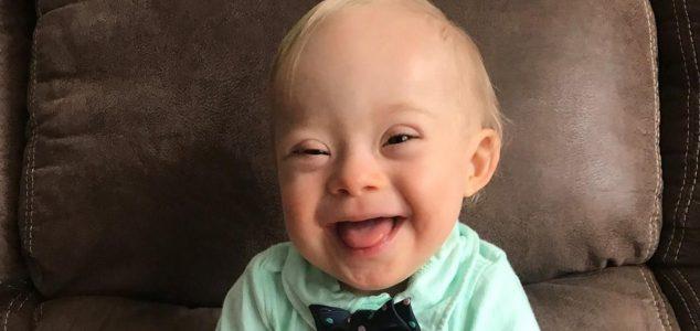 Dauno sindromu sergantis vaikas išrinktas 2018 metų kūdikiu!